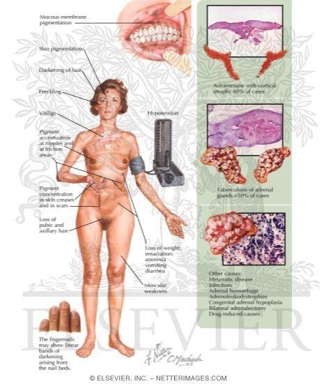 Chronic Primary Adrenal Failure - Addison Disease