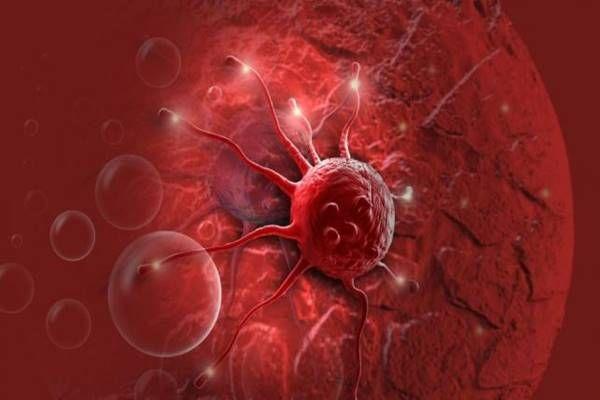 5 élelmiszer, mely elpusztítja a rákos sejteket