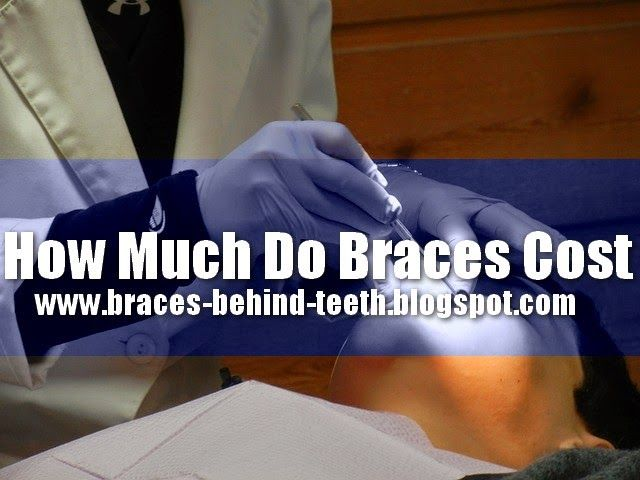 How Much Do Braces Cost ? http://braces-behind-teeth.blogspot.com/2014/06/How-Much-Do-Braces-Cost.html