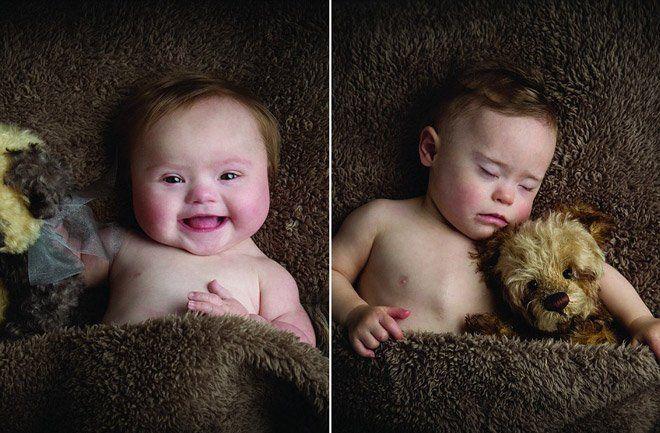 Ces bébés atteints de trisomie 21 sont absolument craquants dans ce calendrier de charité