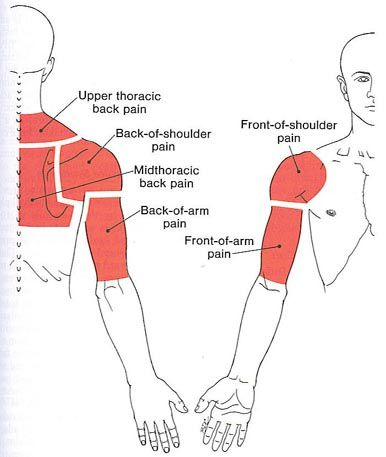 trigger point section diagram for the upper back, shoulder, and arm.