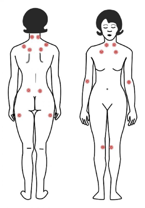 Vibration Exercise May Ease Fibromyalgia Pain