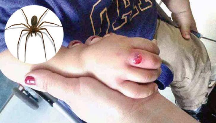 Un niño fue picado por una araña letal y su dedo se hinchó. Quienes debían ayudar lo ignoraron