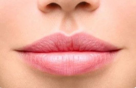 "Pouts are in!! Our number-one goal is to achieve a fresh, rejuvenated look, without sacrificing a natural appearance. ""Less is best"" Call Kas for a complimentary consultation Ph 8768 5000. http://renaissanceskincare.com.au/"