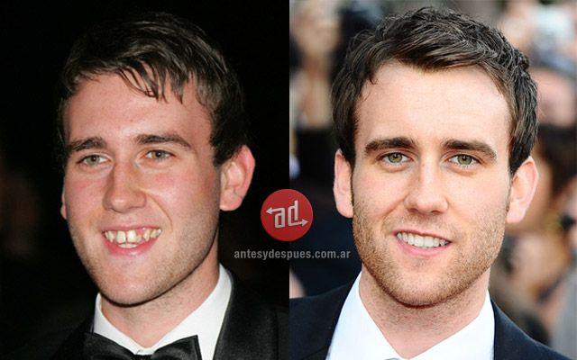celebrity dental work before and after | Matthew Lewis teeth