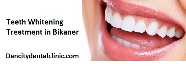 teeth whitening treatment - Teeth whitening is one of the best way to improve your smile and self-confidence. White teeth are the main factor of a beautiful smile for everyone. As a result, teeth whitening is the most famous procedure in cosmetic dentistry. But a lot of stores have shelves full of at-home whitening treatments to try, the safest, quickest, cost effective and most effective way for teeth whitening.