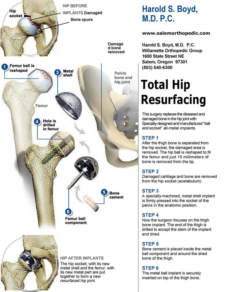 Total Hip resurfaceing - Harold S. Boyd, M.D. - Learn more about Total Hip Resurfacing Surgery