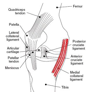 An MCL tear is a common injury caused by overstretching the medial collateral knee ligament. Find out how an MCL injury presents and how to treat it effectively.