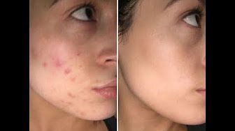 real-U - YouTube - YouTube real-u  skincare  pimples, oily, breakouts, acne