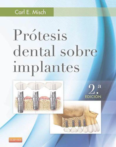 """Prótesis dental sobre implantes : 2a ed."" / Carl E. Misch. Madrid : Elsevier España, cop. 2015. Matèries : Implants dentals; Pròtesis dentals. #nabibbell"