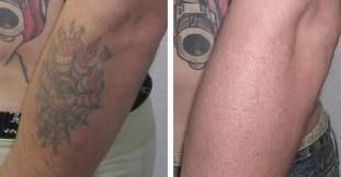 In disappearing ink the best tattoo removal treatment is possible for every patient. #tattooremovallaser #tattooremovaldiy