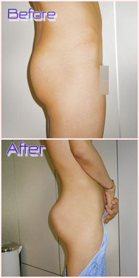 Tummy Tuck Surgery Before/After Photos and Costs http://www.asiacosmeticthailand.com/
