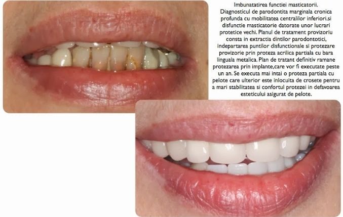 Dental tourism abroad - Romania. #cosmeticdentistryabroad #dentaltourismRomania #cosmeticdentaltreatment #cheapdentaltreatment #medicaltourismRomania #medicaltourismEasternEurope , #dentalltourismpackages , #dentaltourismcompanies, #dentaltourismwebsites   http://www.intermedline.com/services/medical-tourism-romania-treatment/dental-clinics-romania#.UrdcSvQW3sk CONTACT NOW! mailto:office@int... Phone: 1 518 620 42 25