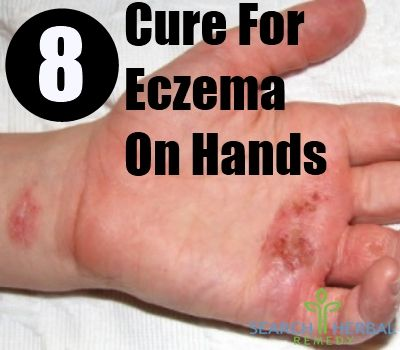 8 Cure For Eczema On Hands