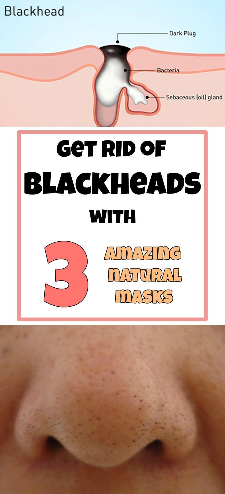 GET RID OF BLACKHEADS WITH 3 AMAZING NATURAL MASKS