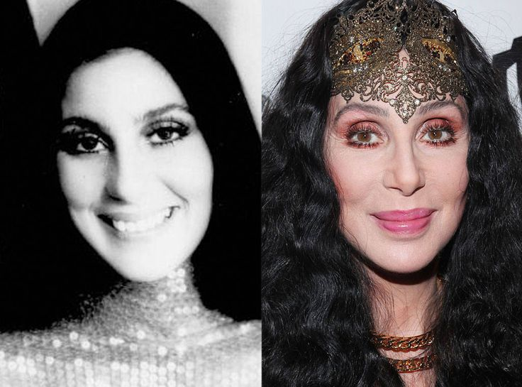 Cher Plastic Surgery; Before And After