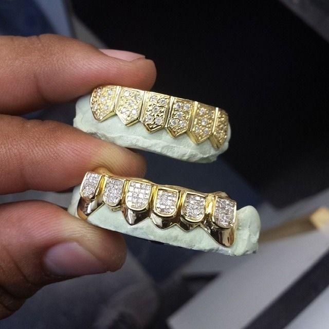 Vampire Platinum: Best 25+ Gold Teeth Ideas On Pinterest