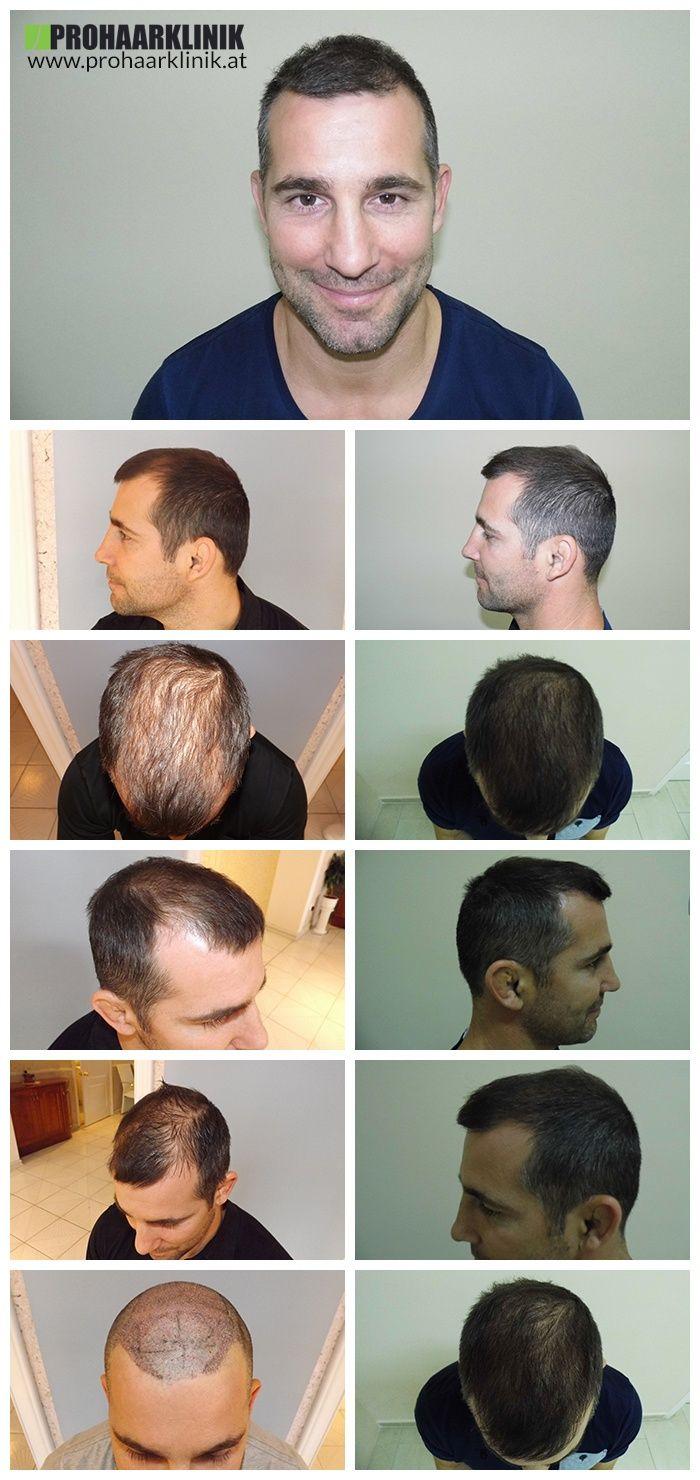 http://www.prohaarklinik.at/haartransplantation-vorher-nachher-bilder/  Haartransplantation für Manner - PROHAARKLINIK  Dieses Bild zeigt die wunderbaren Ergebnisse der Haar-Implantate, die bei der PROHAARKLINIK durchgeführt wurden.
