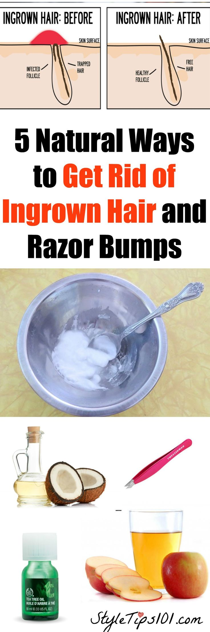how to get rid of painful hair bumps