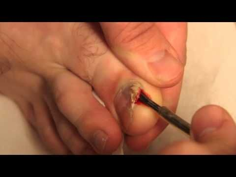 Ingrown Toenail Removed with screwdriver - YouTube