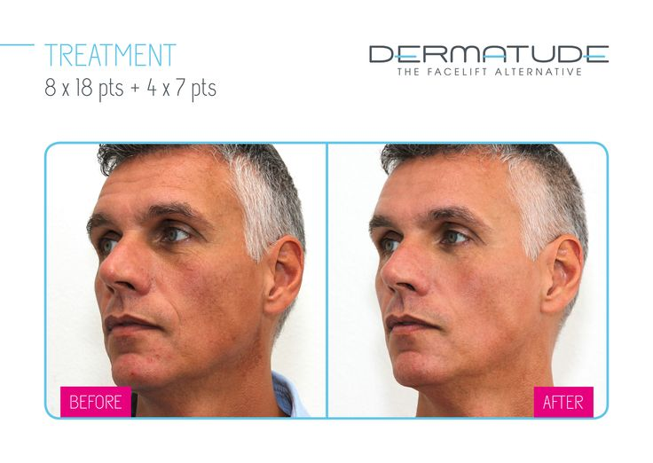 Before and After facial left #Dermatude