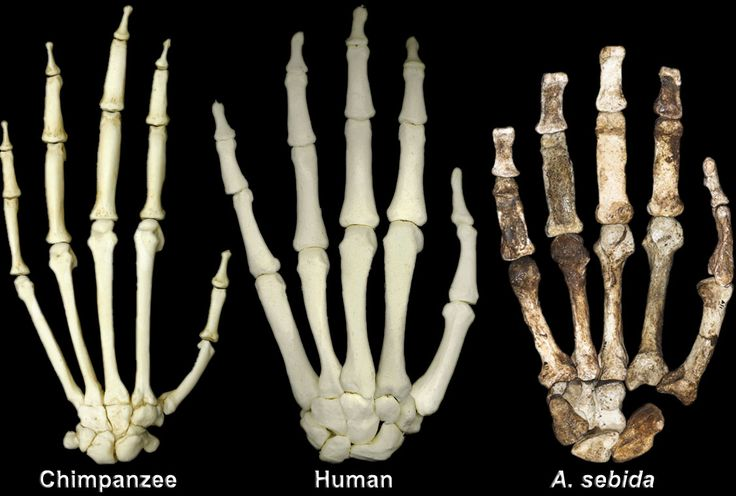 hand skeleton comparison - chimpanzee (left), human (middle, Skeleton