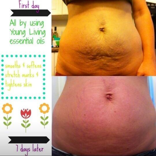 Young Living Essential Oils: Skin Firming Stretch Marks ~ three drops of Frankincense, Geranium, and Grapefruit oil with a small amount of coconut oil. Apply once per day. by eloise