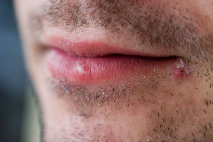 Cold sores are the result of a viral infection that causes blistering to occur near the mouth. They are a result of the herpes simplex virus 1 and lay dormant in facial nerves. Once the virus enters the body, it never leaves, appearing and reappearing sporadically over time.Such outbreaks can be caused by a bevy of things, including stress, sunlight, menstruation, sunburn, fever and dehydration. If you want to treat cold sores naturally at home then follow these guidelines.Thing Required…