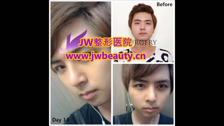 韩国JW整形医院整形效果视频