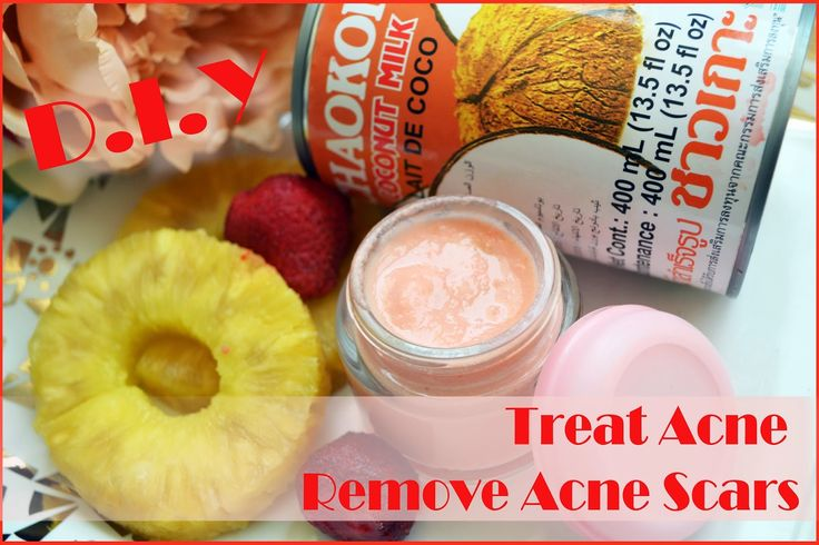 Acne Treatment at home! Also removes acne scars and hyper-pigmentation! I swear this face mask works like MAGIC!!