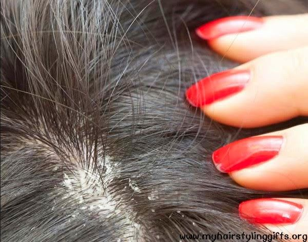 My Hair Styling Gifts: How to Stop Dandruff at Home
