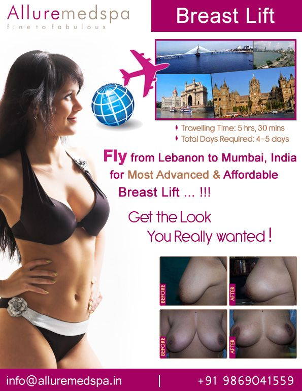 Breast lift is procedure Which Can Help Raise and Reshape Sagging Breasts by Celebrity Breast lift surgeon Dr. Milan Doshi. Fly to India for Breast lift surgery (also known as Reduction Mastopexy, Reduction Mastopexy, Breast lift) at affordable price/cost compare to Beirut, Tripoli, Djounie,LEBANON at Alluremedspa, Mumbai, India.   For more info- http://www.Alluremedspa-lebanon.com/cosmetic-surgery/breast-surgery/breast-lift.html