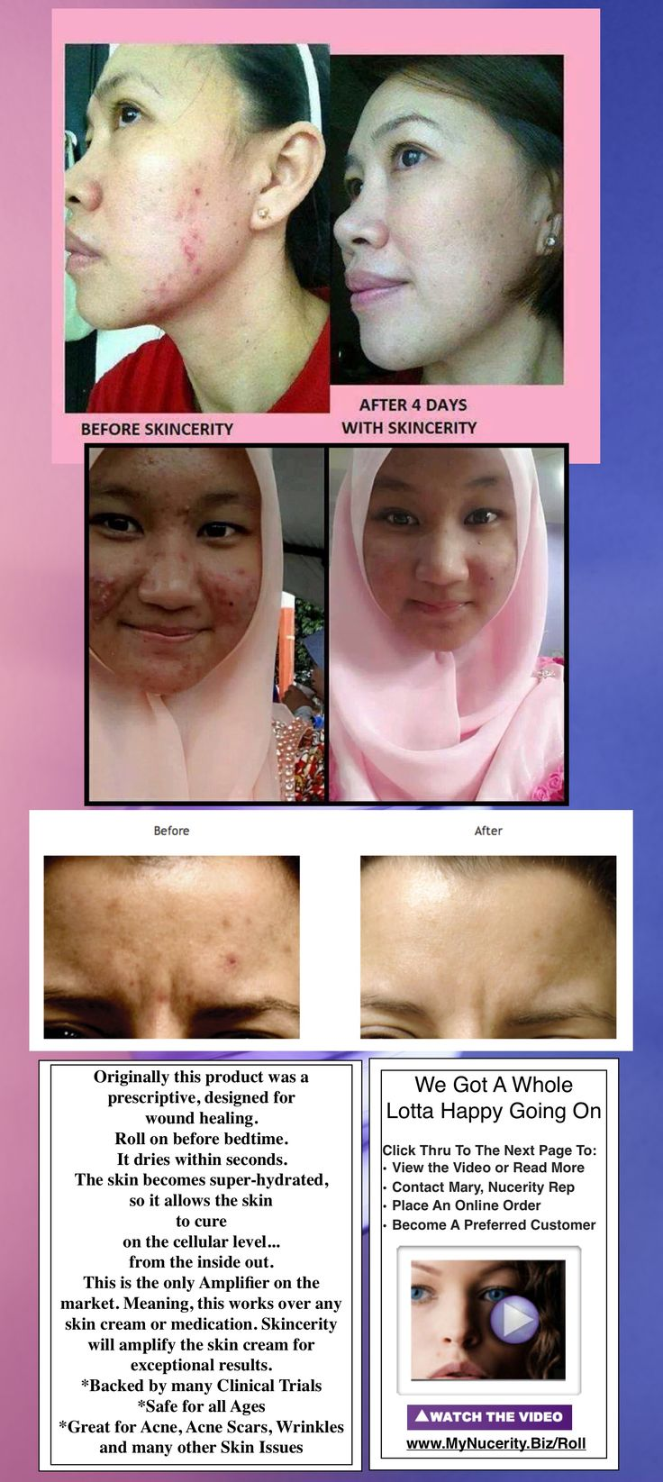Acne Before & After Pics - Effective & Quick Treatment for acne, acne scars, wrinkles and other skin issues. www.Roll.MyNucerity.Biz