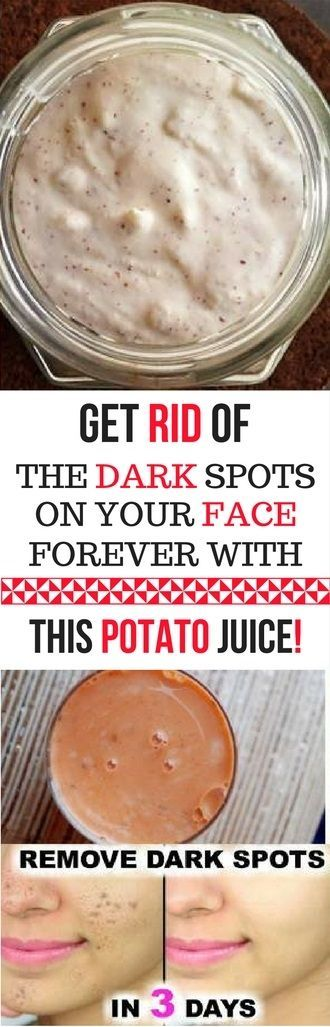 GET RID OF THE DARK SPOTS ON YOUR FACE FOREVER WITH THIS POTATO JUICE -