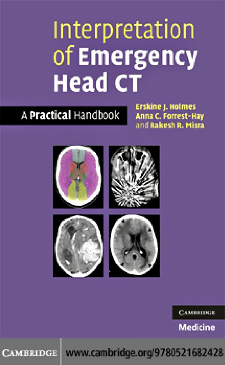 Interpretation ct scan brain interpretation emergency