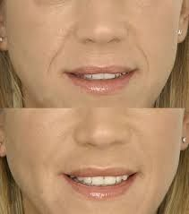 You can easily smoothen the deepening Nasolabial folds commonly known laugh lines, on your face with the help of a reputed clinic like Wrinklesfree that specializes in wrinkle treatment via various techniques like topical medication, dermal fillers, laser treatment, chemical peel, Dysport injections, etc.For more details please visit:http://goo.gl/sr7ma5