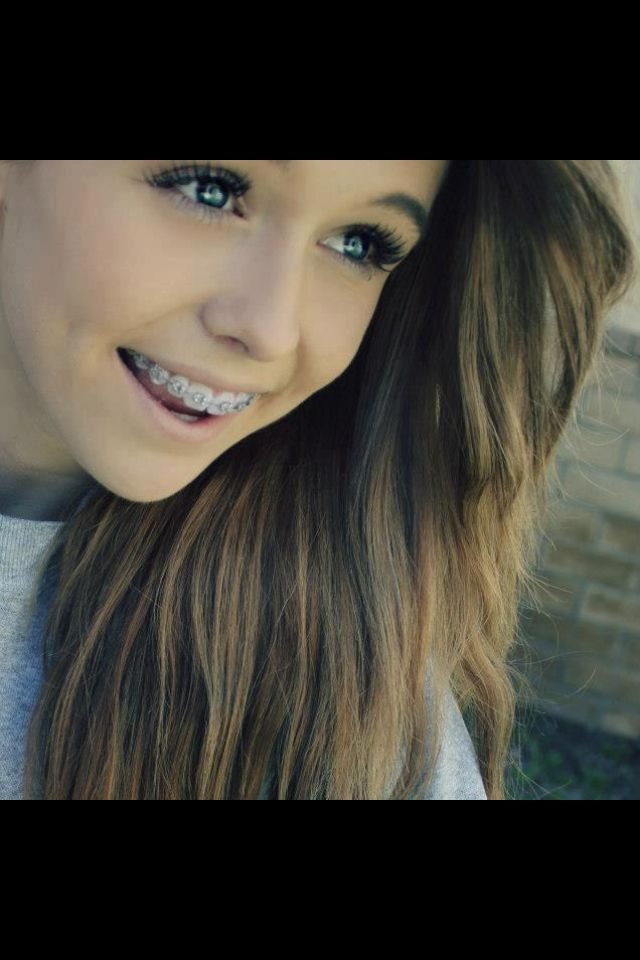 cute girls with braces - Google Search