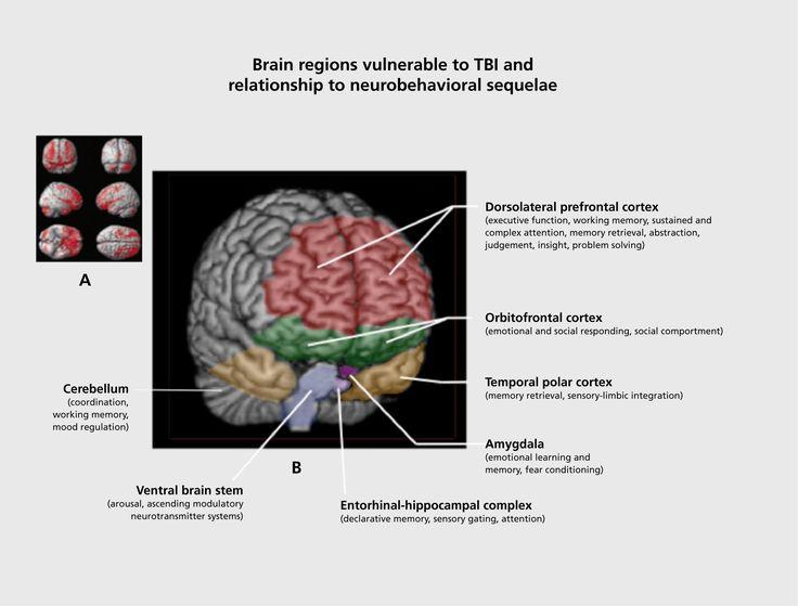 traumatic brain injury definition pdf