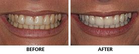 This young woman chose to align her teeth with an Inman Aligner first so the veneers would involve very little tooth preparation for a safer, stronger and healthier result. The Inman Aligner took only 6 weeks and the veneers were finished 4 weeks later. http://www.praisdental.co.uk/straightening/