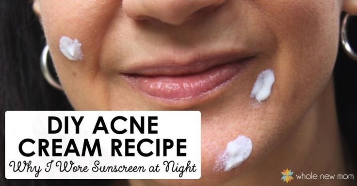 Never thought I would ever wear sunscreen at night, but with I'm sold on this Homemade Acne Treatment. I didn't believe it but it works! Zinc oxide for acne!