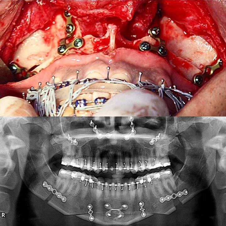 Fixation (FIR) in the Le Fort I osteotomy. Lefort III Lefort I and N.O.E. Fxs Dentaltown Message Board Oral & Maxillofacial Surgery   http://ift.tt/2wO8vHf