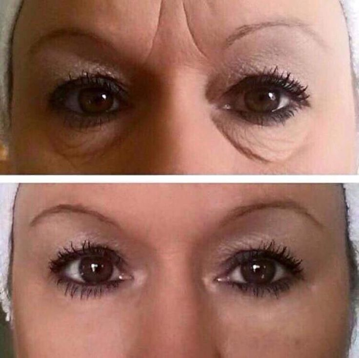 AMAZING RESULTS!!!! #instantlyageless strikes again!! If you haven't tried this cream yet, WHAT ARE YOU WAITING FOR??!! #Botox effects WITHOUT Botox NEEDLES or Botox PRICE!!! It's PERFECT!! Message us to order!! :)