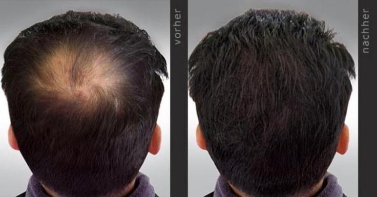 Gegen Haarausfall und Geheimratsecken wirksam vorgehen.Garantiert!