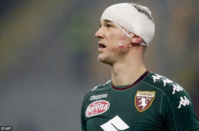 Joe Hart appears with studmarks on his cheek after a horrific collision with Gianluca Lapadula