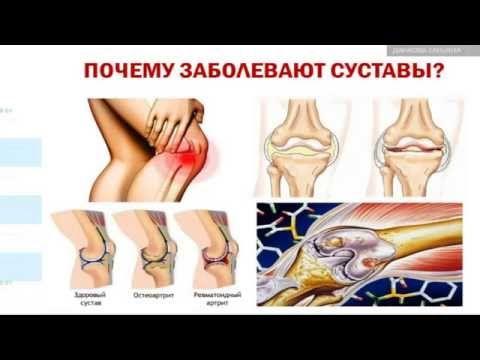 Как можно восстановить здоровье суставов при помощи Реноватора !!
