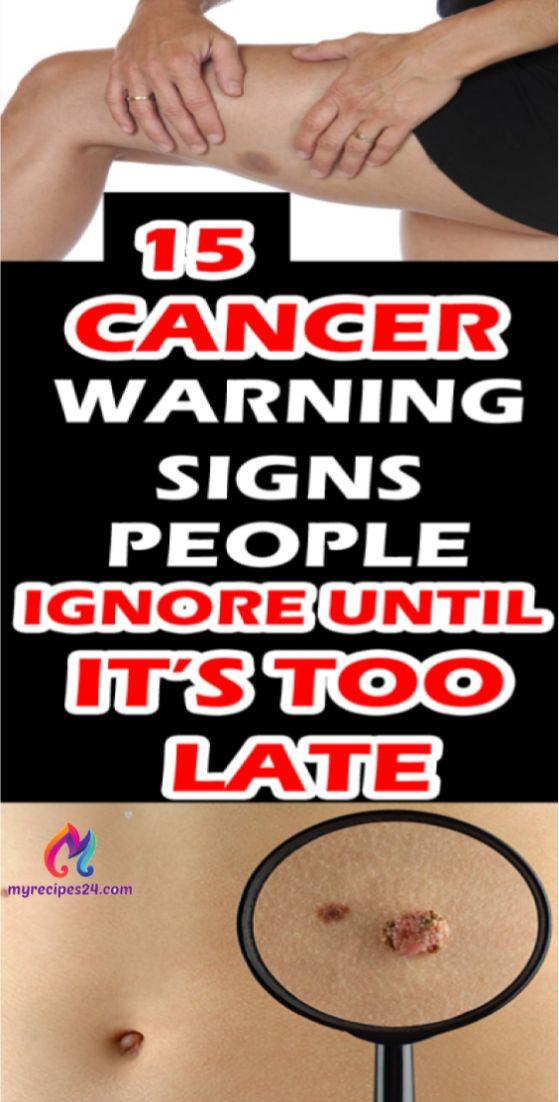 15 Krebs-Warnzeichen, die die Leute ignorieren, bis es zu spät ist !!! – Travel blog board