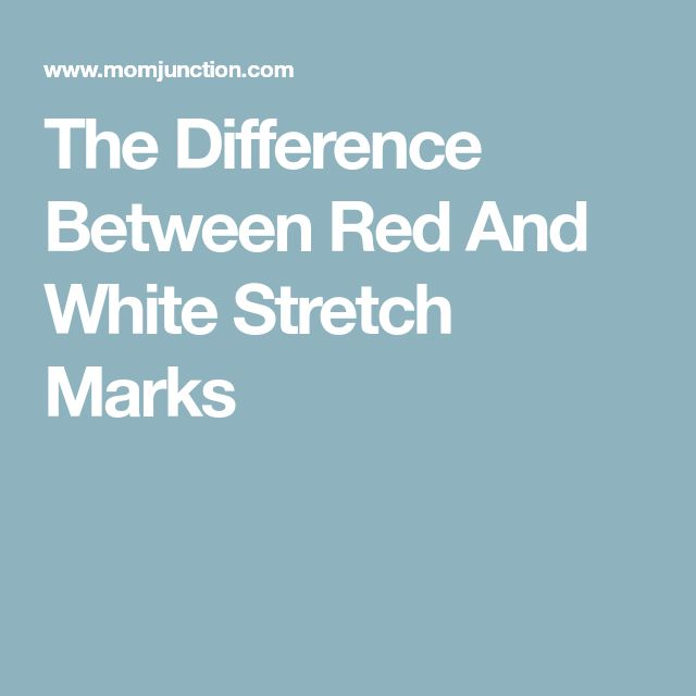 The Difference Between Red And White Stretch Marks