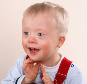down's syndrome characteristics | Dentistry and Medicine: Common Syndromes and developmental anomalies ...