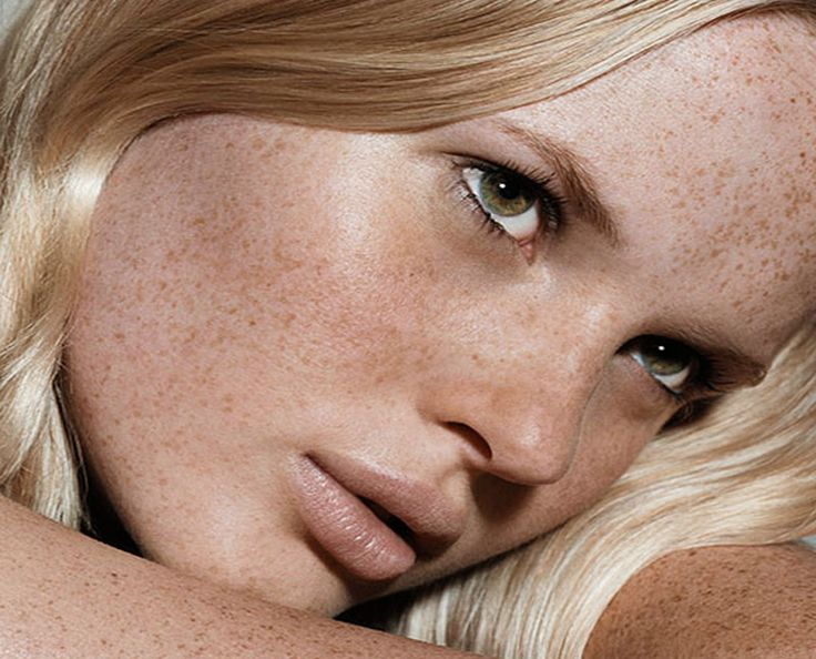 how to get rid of sun freckles on face