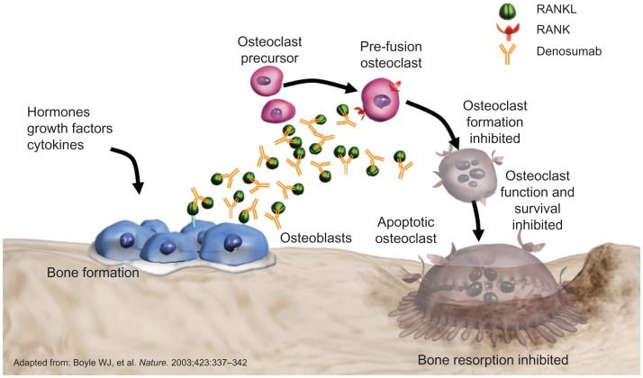 Denosumab in CTIBL: propo... - Yale Image Finder